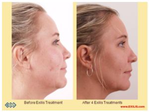 Before and After 4 Exilis Treatments